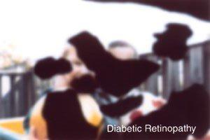 Image recreates someone having the eye condition diabetic retinopathy
